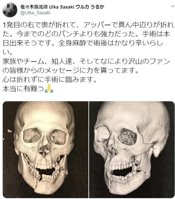 【RIZIN】佐々木憂流迦が15日手術「今までのどのパンチよりも強力だった」