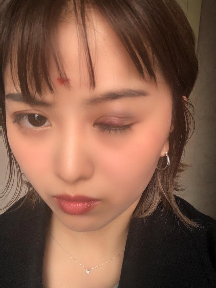 【DEEP JEWELS】暴行被害に遭った山崎桃子「網膜に穴が2カ所空いていた」治療受け2週間安静へ